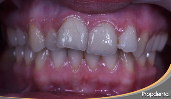 tratamiento dientes mal colocados