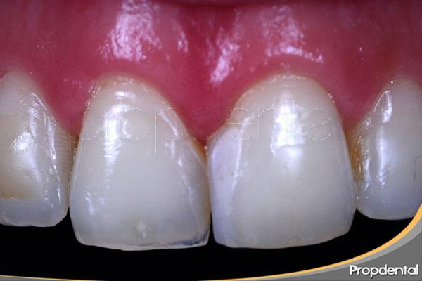 unión-de-la-porcelana-al-diente