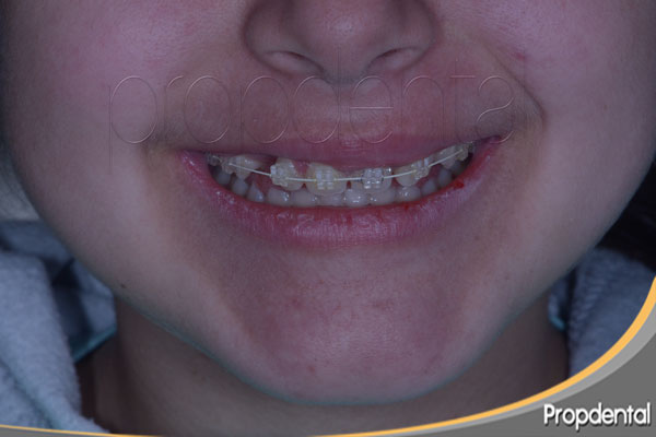 Edad para iniciar tratamiento de ortodoncia