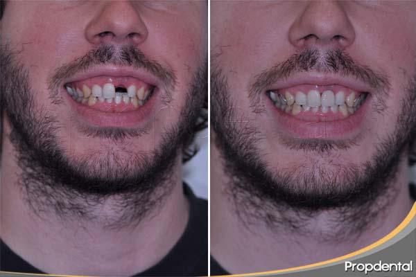 antes y después con el cangrejo dental