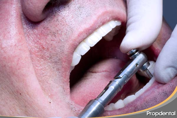 atornillado de prótesis implantosoportada con tornillos de titanio