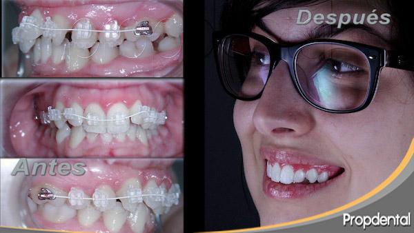 brackets de zafiro para alinear los dientes