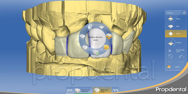 cad cam dental