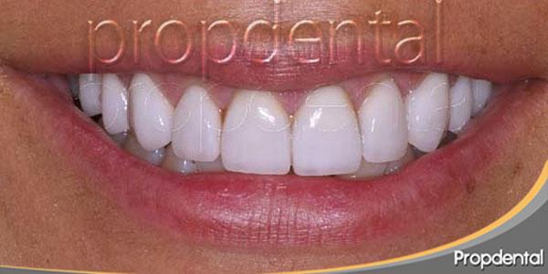 carillas dentales después de alargamiento