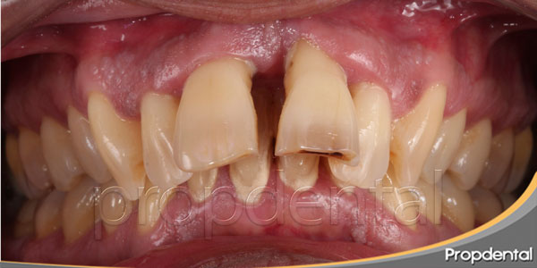 caso clínico de coronas totales de porcelana