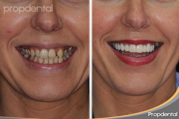 caso clínico de estética dental