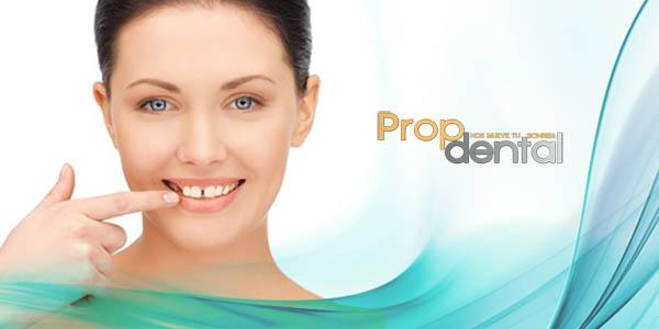 causa separación de dientes