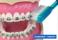 cepillado de los brackets dentales
