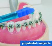 cepillarse los dientes con ortodoncia