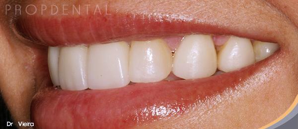 cerrar espacios entre dientes