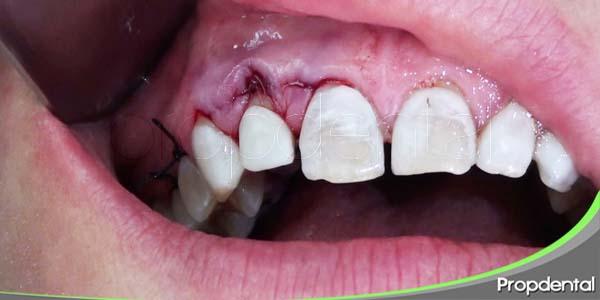 cirugía plástica periodontal
