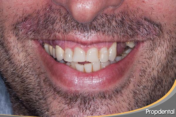 consecuencias de la pérdida de dientes