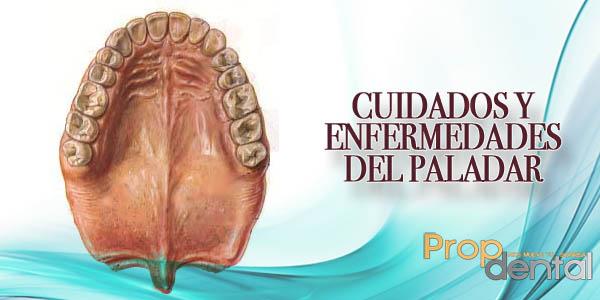 cuidados y enfermedades del paladar
