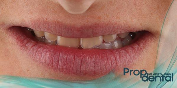 diente astillado