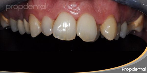 dientes antes del tratamiento estético