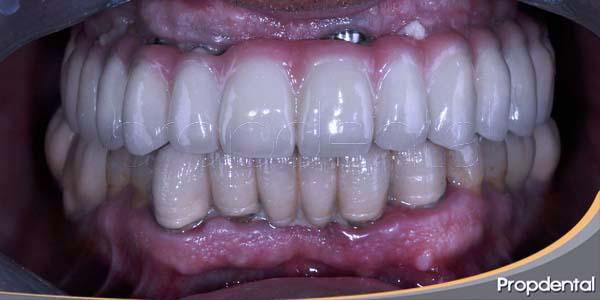 dientes fijos