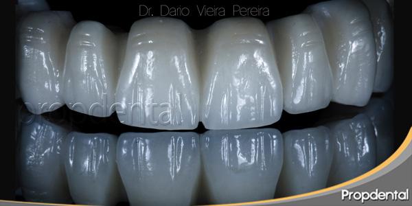 tipos de porcelanas dentales en implantes dentales