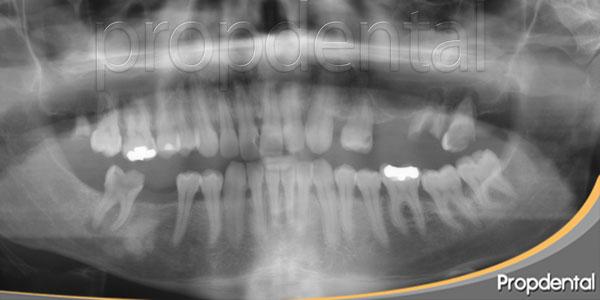 falta de hueso en el maxilar