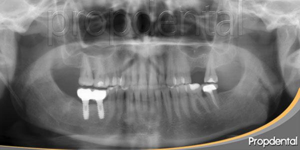 falta de hueso para implantes maxilar superior