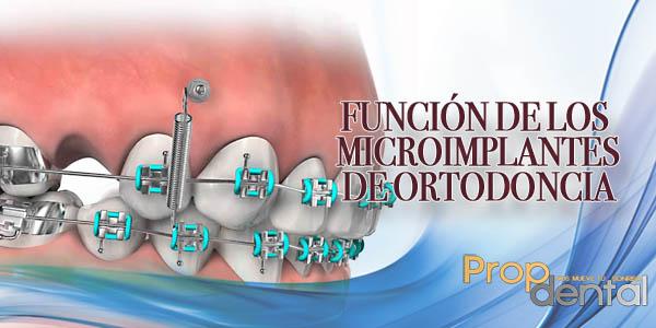 función de los microimplantes de ortodóncia
