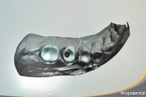 funda sobre implante con cadcam