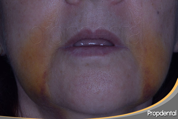 hematoma implantes dentales