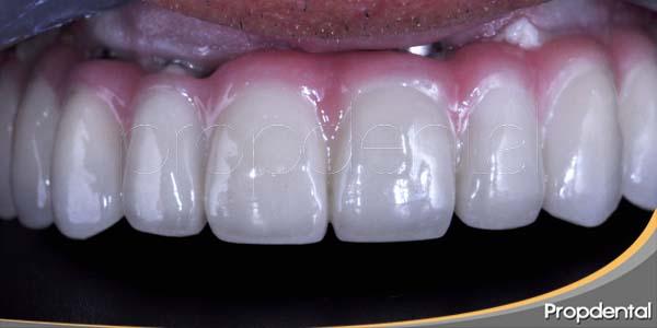 implantes de dientes