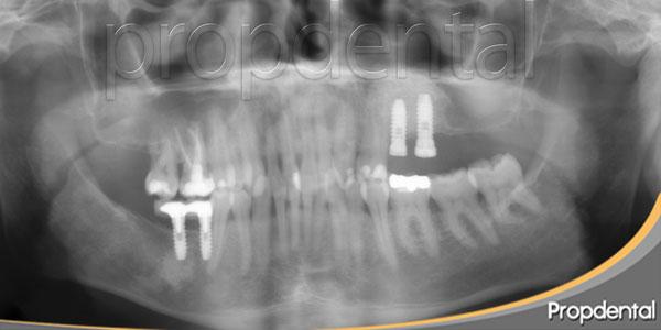 implantes después de la elevación de seno maxilar