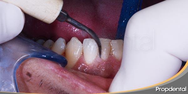 limpieza con higienista dental
