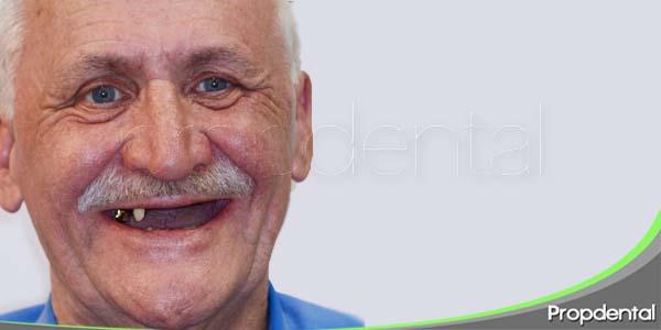 oclusión en pacientes edentulos
