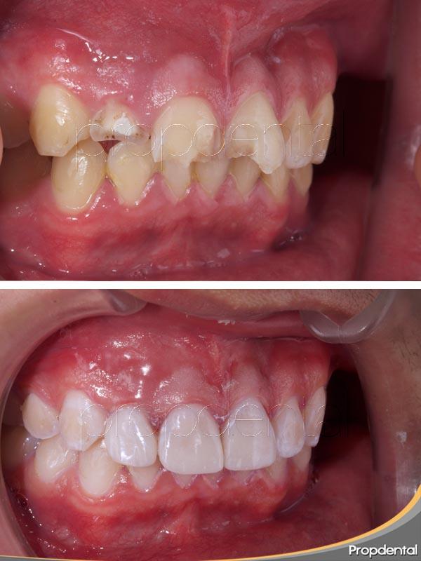 odontología minimamente invasiva