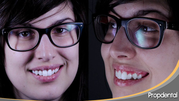 ortodoncia estética en Barcelona