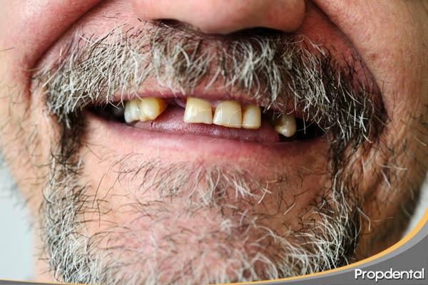 pérdida-de-dientes