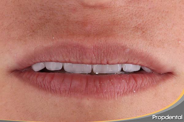 precio carillas sin tallar el diente