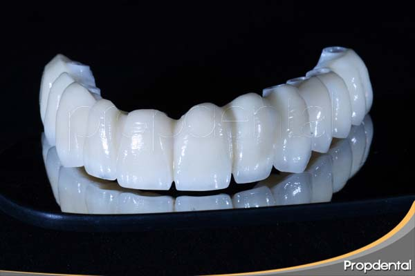 precio prótesis de circonio sobre implantes dentales en Madrid