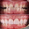 precio prótesis dentales