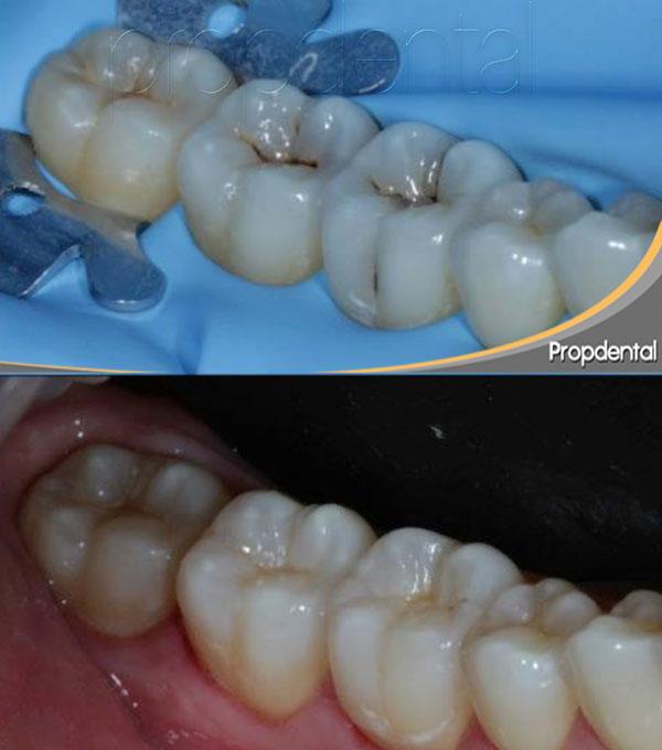 prevención y tratamiento de la caries dental