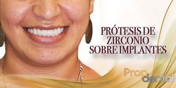 prótesis de zirconio sobre implantes