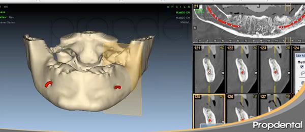 Reponer dientes perdidos con implantes