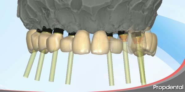 soluciones estéticas de las prótesis en implantes