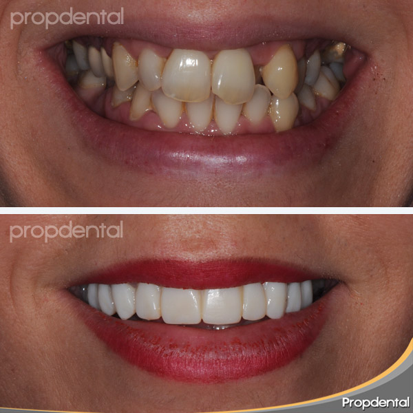 sonrisa con dientes provisorios