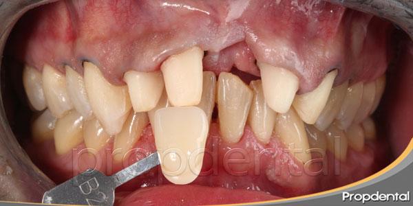 tallado dental para prótesis fija