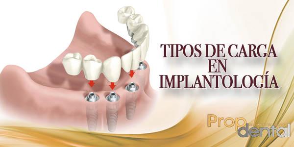 tipos de carga en implantologia