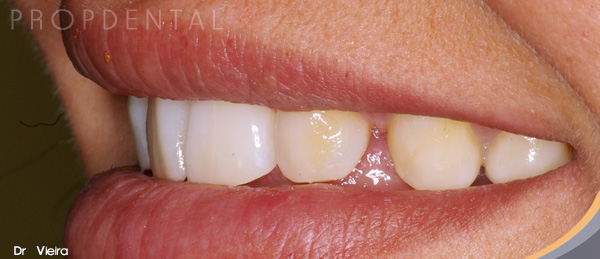 tratar dientes separados