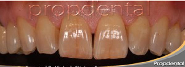 tratamiento de los dientes amarillos