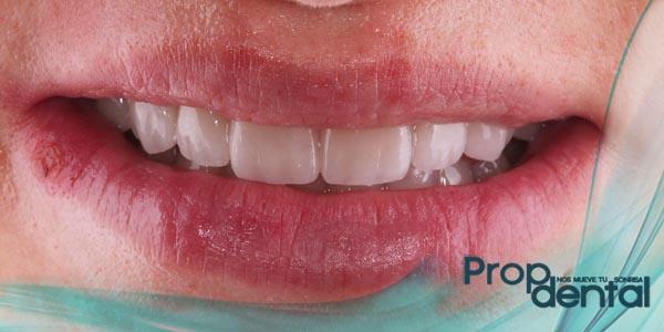 trozo de diente roto