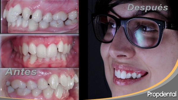 video de ortodoncia estética