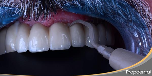 Instrumentos de higiene en implantología