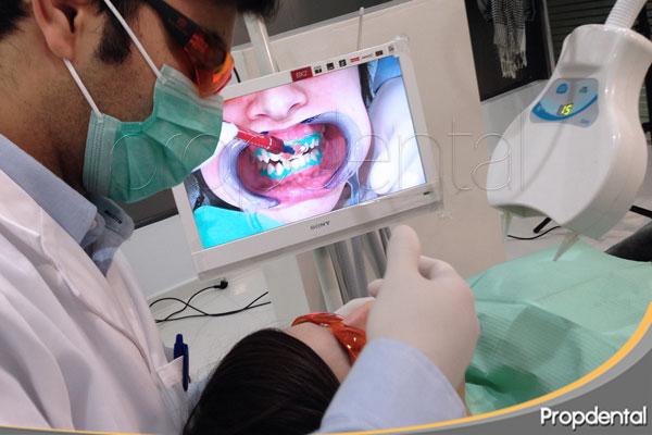 Verdades y mentiras sobre el blanqueamiento dental
