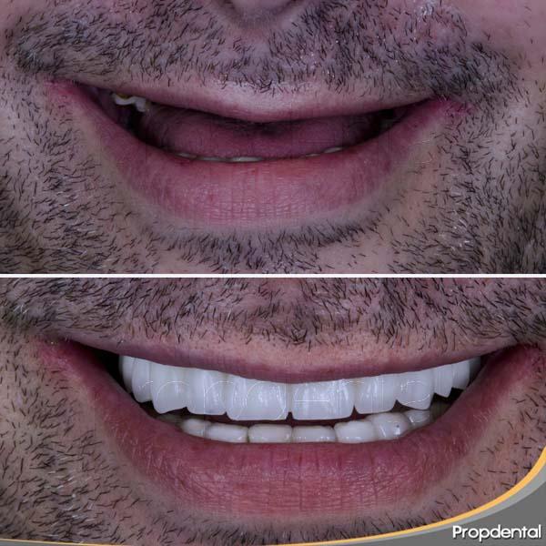 antes y después de la prótesis sobre implantes